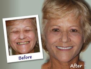 all-on-4 dental implant makeover